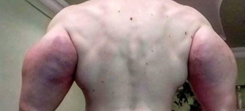 'Popeye' que injetou óleo no corpo pode ter que amputar os braços